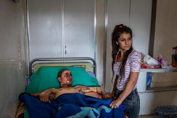Fotografia finalista del World Press Photo 2020 / Injured Kurdish Fighter Receives Hospital Visit © Ivor Prickett, Ireland, for The New York Times